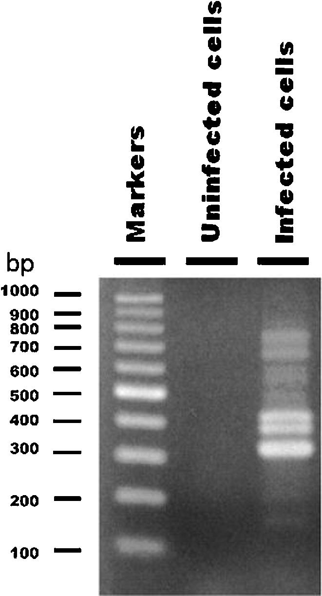 Agarose gel electrophoresis of RDA products from RNA extracted from bovine parainfluenza virus 3-infected cells. Double-stranded cDNA was synthesized from RNA of bovine parainfluenza virus 3-infected MDBK cells and subjected to RDA. Mock-infected cells were used for the synthesis of driver amplicons for RDA. One-twentieth of the volume of the amplified products was separated on 3% agarose gel and stained with ethidium bromide. RDA product from the uninfected control cells was used as a negative control.