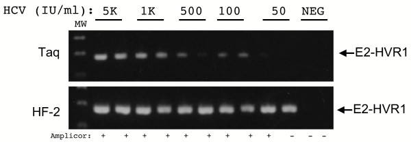 Comparison of the sensitivity of the E2-HVR1 PCR using Taq and HF-2 enzymes. RNA was extracted from duplicate serial dilutions of a WHO HCV standard and RT-PCR was performed with Taq and HF-2 enzymes. The dilutions corresponded to 50,000 (5K), 1,000 (1K), 500, 100, and 50 IU/ml, and are indicated above each lane. The position of the 176 bp E2-HVR1 is indicated with arrows. MW represents the 100 base pair DNA molecular weight marker. Below each lane is the result of testing of the same dilution of the standard with the Roche COBAS Amplicor assay. The result of this test gives a positive (+) or negative (-) result.
