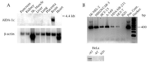 AIDA-1c expression is highest in neuronal tissue and is present in cancer lines . (A) A Multi-Tissue Northern blot (Clontech) was probed with an AIDA-1c specific probe. Re-probing of the same blot with a β-actin probe (bottom panel) is shown, verifying the presence of RNA in each lane. (B) (Upper panel) Nested PCR using AIDA-1c specific primers was conducted on cDNA obtained from a variety of cancer cell lines: SK-MEL-2 (melanoma), NIH:OVCAR-3 (ovarian), HCT-15 (colon), A-549 (non small cell lung carcinoma), MDA-MB-231 (breast), MCF-7 (breast). The positive control lane used AIDA-1c cDNA as the template. (Lower panel) HeLa expresses AIDA-1c. HeLa RNA was subjected to RT-PCR using an AIDA-1c specific primer. No product is observed in the reaction lacking reverse transcriptase (-RT).