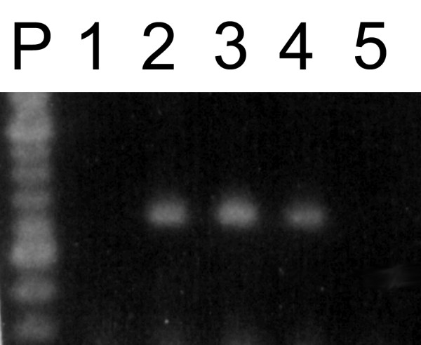 Effect of EDTA concentration on CNA1 mRNA amplification by RT-PCR . RNA samples extracted from cells harvested at 1.2 mg (dry weight/mL) were treated with DNase I according to protocol II. The reactions were stopped by the addition of 1.25 mM (lane 1), 1.5 mM (lane 2), 1.75 mM (lane 3); 2.0 mM (lane 4) and 2.25 mM (lane 5) of EDTA and treated samples were amplified by RT-PCR using CNA1 primers. P, 100 bp DNA Ladder (BioLabs-Inc).