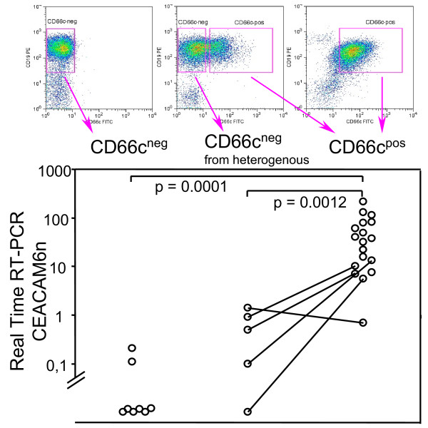Transcription of CEACAM6 versus surface CD66c expression on sorted cells. FACSsorted CD66c surface negative (CD66c neg ) or positive (CD66c pos ) ALL lymphoblasts, five patients with heterogeneous CD66c expression were sorted into both CD66c negative and CD66c positive fraction (lines connect sorted fractions from the same specimen). Mann-Whitney test was used to compare groups (n = 32). CEACAM6n value is normalized to beta-2-microglobulin (see Methods).