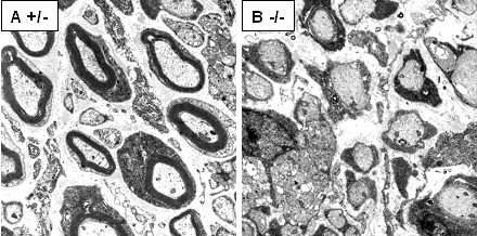 Electron microscopic analysis of sciatic nerves. Electron micrographs of the sciatic nerves from Adam22 +/- (A) and Adam22 -/- (B) mice at postnatal day 10 are shown. In the heterozygote (A), thick myelin was formed, while no myelin was formed in the ADAM22-deficient mouse (B). The axons looked normal in each genotype.