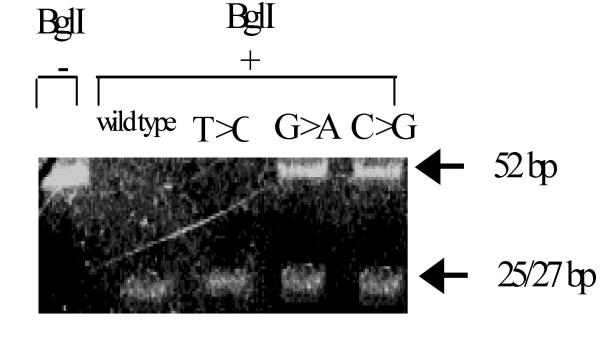 Check of the integrity of codon 634 with the <t>Bgl</t> I enzyme. DNA samples were amplified using forward and reverse primers shown in figure 1 . The PCR product was incubated in the presence (lane 2–5) or absence (lane 1) of Bgl I. The restriction fragments were run in a non-denaturing 10% PAGE. Lane 1: wild type 634 codon without enzyme incubation ; lane 2: wild type 634 codon ; lane 3: mutation in the first base of the 634 codon (T > C); lane 4: mutation in the second base of the 634 codon (G > A); lane 5: mutation in the third base of the 634 codon (C > G). Both alleles are completely cut by the enzyme in lane 2 and 3, which means that at least the second and third bases of the codon are correct. In lane 4 and 5, the product is not completely cut, which reveals that one allele has a mutation at the second or third base of codon 634.