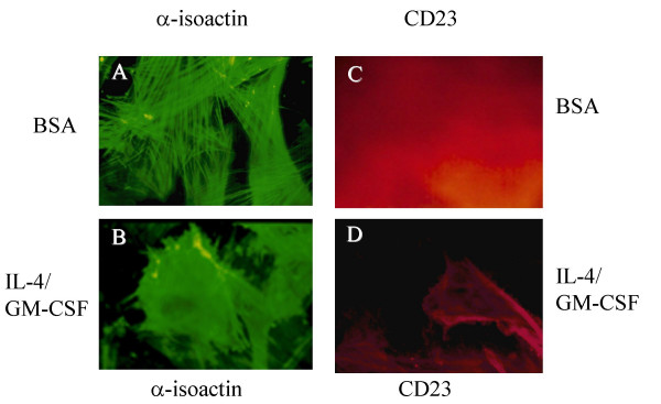 Expression of CD23 in response to IL-4/GM-CSF is accompanied by changes in huASMC morphology . Alpha-smooth muscle isoactin positive huASMC (Clonetics) in T-75 flasks were starved for 24 h in 0.1% FBS containing medium M199. The cells were then stimulated with either BSA or IL-4 (0.5 nM)/GM-CSF (0.4 nM) for 24 h, and stained with either anti-smooth muscle-isoactin (A B) or anti-CD23 antibody (C D). Those cells stimulated with the combination of IL-4/GM-CSF demonstrated CD23 expression (D) and changes in cell morphology including depolymerization of isoactin fibers, cell spreading, and membrane ruffling (B). Cells stimulated with BSA (vehicle for IL-4/GM-CSF) alone did not increase the expression of CD23 (C) nor changes in phenotype (A). These findings were confirmed by three independent observers.