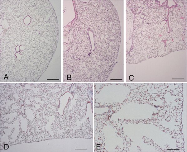Histological appearance of C57 BI/6 mouse lungs 3 and 7 days following bleomycin challenge. (A) Histologic section from the lung of a C57 Bl/6 mouse treated with saline showing a normal parenchyma. Representative histologic sections of C57 Bl/6 mice at 3 (B) and 7 (C and D) days after bleomycin treatment showing appreciable morphologic emphysema but not fibrosis. Scattered inflammatory cells are present through lung parenchyma (E). (E) Shows a higher magnification of (D). (A-C): Hematoxylin-eosin stain, scale bar represents 400 μm. (D) and (E): Masson's trichrome stain, original magnification × 40 and × 100, respectively. Scale bars represent 400 μm and 100 μm, respectively.