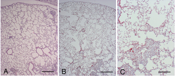 Histological appearance of pallid and <t>C57</t> <t>Bl/6</t> mouse lungs 14 days following bleomycin challenge. Representative lung histologic sections of a pallid (A) and a C57BI/6 (B) mouse at 14 days after bleomycin. Fibrotic and emphysematous areas are widely spread and intermixed. Emphysema is often located quite distant from the fibrotic reaction (A-B).(C) shows a higher magnification of (B). (A): Hematoxylin-eosin stain, scale bar represents 400 μm. (B) and (C): Masson's trichrome stain, scale bars represent 400 μm and 100 μm, respectively.