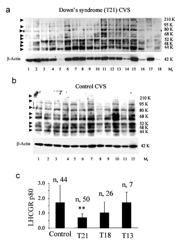 The production of mature LHCGR isoforms in chorinic villi from Down's syndrome pregnancies are significantly reduced compared to that of controls. The CVS samples were Tri-zol extracted to recover mRNA as well as proteins. Approximately 10 μg of total protein was loaded in each lane. The proteins extracted from DS (T21) CVS (a) and control CVS (b) pregnancies were resolved in 8% polyacrylamide-SDS gels, Western blotted and immunoreacted with anti-human LHCGR (LHR-29) monoclonal antibody. Blots were stripped prior to immunostaining with anti-β-Actin monoclonal antibody. The data shown in a) and b) were from the same experiment except that the control and DS proteins were separated in two gels at the same time. In order to compare the band intensity in different experiments, two known CVS samples in duplicate were incorporated in each experiment. The density of the 80K LHCGR and 42K β-actin bands served as references for quantitative analysis of the experimental samples. The relative migration of the isoforms is indicated by an arrow. The M r 80K protein band (LHCGR p80), indicated by * in a) and b), well separated from the neighboring variants were scanned and c) the relative densities of the LHCGR p80 with respect to β-Actin in normal and trisomic pregnancies, n = total number of experiments carried out on protein samples in each condition. ** P