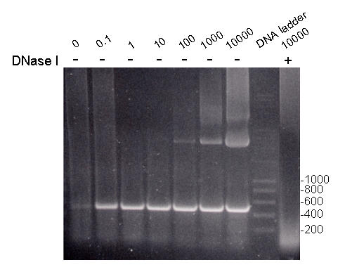 DNase I treatment of template prevents amplification of 500 bp product. Series of PCR reactions were performed on varying concentrations of clonal template DNA. Mass of template DNA (ng) and DNase I treatment (+/-) is indicated above the lanes. DNA ladder was run as molecular weight standard with sizes indicated (bp). Treatment with DNase I as described in Materials and Methods prevented amplification of 500 bp product from 10 μg of DNA. Gel image was scanned and processed using Adobe Photoshop Version 5.5.