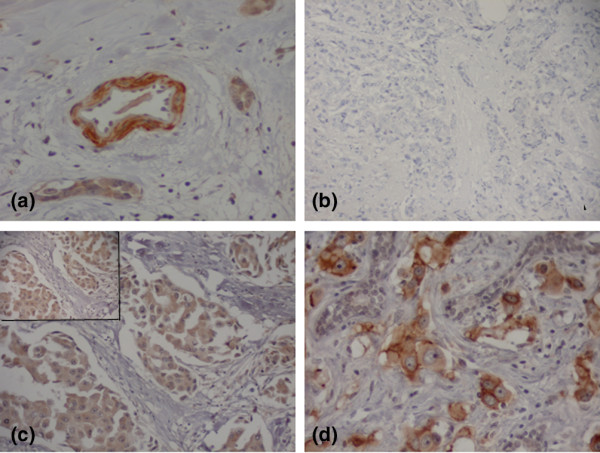 PDGFR-α expression in invasive breast carcinomas by immunohistochemistry (streptavidin-biotin-peroxidase). (a) Platelet-derived growth factor receptor α (PDGFR-α) expression in pericytes and smooth muscle cells of a blood vessel: internal control (original magnification × 200); (b) Absence of PDGFR-α expression in neoplastic cells (original magnification × 200); (c) PDGFR-α diffuse cytoplasmic expression in neoplastic cells (original magnification × 200; inset × 400); (d) Neoplastic cells showing strong and diffuse cytoplasmic PDGFR-α expression (original magnification × 400).