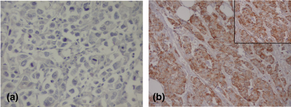 PDGF-A expression pattern studied by <t>immunohistochemistry</t> in invasive breast carcinomas. (a) Carcinoma without platelet-derived growth factor A (PDGF-A) expression (original magnification × 400); (b) Carcinoma with strong PDGF-A expression (original magnification × 200; inset × 400).