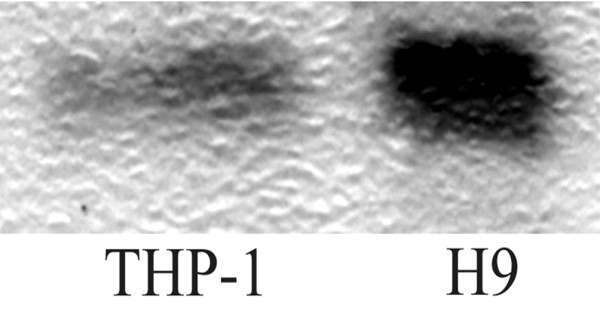 Western blot analysis of anti-TIMP-2 antibodies. Lysates of THP-1 (a human monocytic cell line) and H9 (a human T-cell lymphoma) were separated in 18% Tris-glycine gel, transferred into a polyvinylidene fluoride membrane, and blotted with immunoglobulin G (IgG) fractions from a patient with rheumatoid arthritis having high levels of anti-TIMP-2 antibodies detected by ELISA. The IgG fraction visualized a band of molecular weight 22 kDa, corresponding to TIMP-2. TIMP, tissue inhibitor of metalloproteinases.