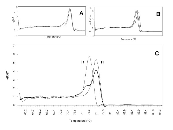 Tm analysis with SYBR ® Green I of 101-bp PCR products to discriminate the H/R alleles. Panel A: Melting profile without DMSO. Panel B: Melting profile with DMSO 5%. Panel C: Melting profile with DMSO 10%. Heterozygotes are depicted as thick lines, the heterozygous pattern is distinguishable from the two homozygous curves because of the shoulder, most likely due to the presence of heteroduplexes.