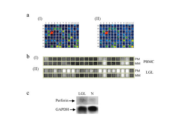 a). A portion of a scanned cDNA <t>microarray</t> showing the differential expression of perforin in the cDNA microarray. Arrow indicates the position of spots corresponding to perforin (D2). Differential expression is only 3.8 b). Shows the differential expression of perforin in oligonucleotide array. Calculated fold change is 103. (I). Hybridization pattern for the perforin probe set (with RNA isolated from normal PBMC), PM = Perfect match, MM = Mismatch. (II). Hybridization pattern for the perforin probe set (with RNA isolated from leukemic LGL), PM = Perfect match, MM = Mismatch Note: Even though the gene is present in trace amounts in PBMC, it is calculated as absent because of the high background caused by MM hybridization. c). Northern blot showing the expression of perforin. Lane LGL = total RNA obtained from leukemic LGL. Lane N = total RNA isolated from normal healthy individuals. Sample from LGL leukemia patients showed over-expression of perforin.