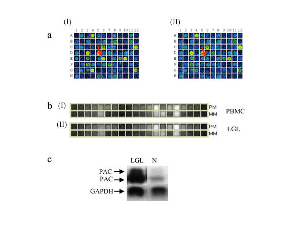 a). A portion of a scanned cDNA microarray showing the differential expression of PAC-1. The cDNA fragment spotted on position E6 corresponds to PAC-1. (I) Hybridization pattern for LGL patient. (II). Hybridization pattern for control. b). Shows the differential expression of PAC-1 in oligonucleotide array. Calculated fold change is 1.6 (I) Hybridization pattern for the PAC-1 probe set (RNA isolated from normal PBMC. PM = Perfect Match, MM = Mismatch. (II) Hybridization pattern for the PAC-1 probe set (RNA isolated from leukemic LGL cells. PM = Perfect Match, MM = Mismatch. c). Northern blot showing the expression of PAC-1 like genes. The probe used was the same as the one spotted on the microarray. Lane LGL = total RNA isolated from LGL leukemia patients (LGL). Lane N = total RNA isolated from normal healthy controls.