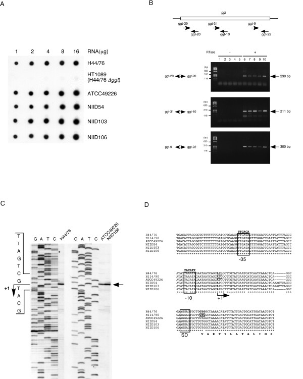 Transcriptional expression of the ggh genes. A. Dot blot analysis using the meningococcal ggt gene as a probe. One to 16 micrograms of RNAs isolated from H44/76, HT1089 (H44/76 Δggt::spc ) [39], ATCC49226, NIID54, NIID103 and NIID106 were subjected to this analysis. B. RT-PCR to detect the transcripts of the gonococcal ggh genes. The schematic figure in the box depicts the position of the primers used in this experiment (see Table 1). RT-PCR was performed without reverse transcriptase <t>(RTase)</t> (lanes 1 to 5) or with RTase (lanes 6 to 10). Lanes 1 and 6, H44/76 ( N. meningitidis ); lanes 2 and 7, ATCC49226 ( N. gonorrhoeae ); lanes 3 and 8, NIID54 ( N. gonorrhoeae ); lanes 4 and 9, NIID103 ( N. gonorrhoeae ); lanes 5 and 10, NIID106 ( N. gonorrhoeae ). The marker in the left-most lane is φ X174 DNA digested with Hae III. Primer sets used for RT-PCR are shown on the left side, and the corresponding PCR products are indicated by arrows on the right side. C. Primer extension analysis to detect the transcriptional start point of the ggt and ggh genes. Total RNA extracted from H44/76 ( N. meningitidis ), ATCC49226 and NIID106 ( N. gonorrhoeae ) was used for the primer extension with <t>AMV</t> reverse transcriptase XL and biotin-labeled oligonucleotide ggt-ext-2. The arrow on the right side indicates the transcriptional start site. D. Alignment of the nucleotide sequences of the upstream regions of the ggt and ggh genes. The sequence data have been deposited in the DDBJ/EMBL/GenBank Databases under the following Accession Numbers: N. meningitidis strains H44/76 [DDBJ: AB193252 ], H114/90 [DDBJ: AB193253 ], N. gonorrhoeae strains ATCC49226 [DDBJ: AB193254 ], NIID54 [DDBJ: AB193255 ], NIID103 [DDBJ: AB193296 ], NIID106 [DDBJ: AB193256 ]. An identical nucleotide is represented as *. The transcriptional start site is shown in bold as +1. The putative -35, -10 elements and Shine-Dalgarno sequence (SD) are depicted in the box, and the ideal -35 and -10 nucleotide sequences are shown above the boxes. The previously predicted start codon (ATG) [25] and newly predicted start codon (GTG) of the meningococcal {\it ggt} gene are underlined. The amino acid sequence deduced from the putative start codon GTG (shown in bold) in the meningococcal {\it ggt} gene is also shown under the corresponding nucleotide sequences.