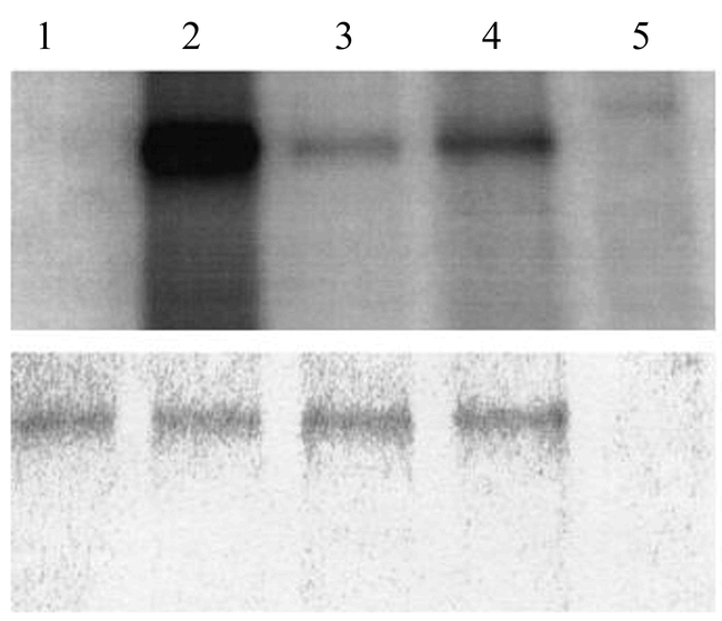 Phosphorylation of bMBD2/3 in vitro . The reaction mixture containing bMBD2/3 proteins and protein kinases [lane 1, Protein kinase A; lane 2, protein kinase C; lane 3, Ca/CaM dependent protein kinaseII; lane 4, brain extract; lane 5 brain extract (-bMBD2/3)] were incubated with [γ- 32 P]ATP. The samples were treated with SDS–sample buffer. After electrophoresis, the gel was analyzed using a bioimaging analyzer (upper lanes). The bands stained with Coomassie Brilliant Blue after electrophoresis (lower lanes).