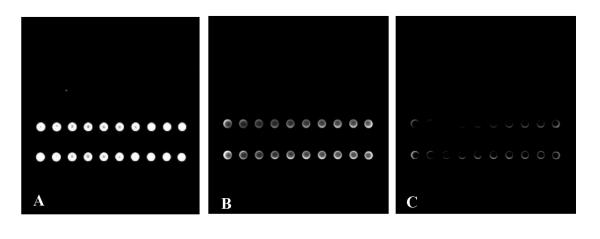 Sensitivity of LDR The reaction was performed using 100 fmol (panel A), 10 fmol (panel B), 1 fmol (panel C) of purified PCR product from P. putida DNA. All images were acquired setting both PMT gain and laser power to 85%.
