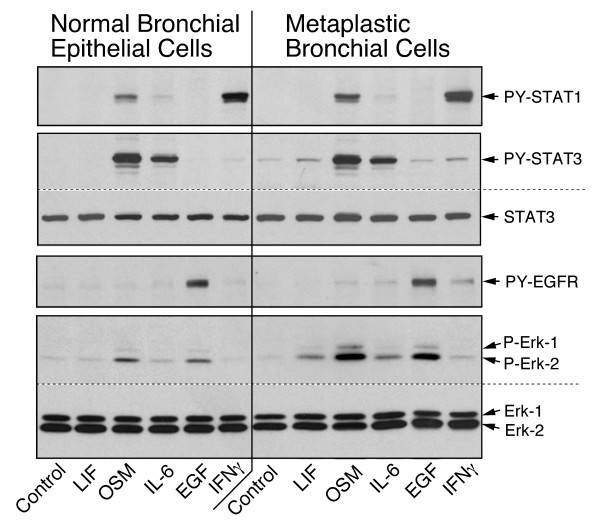 Cytokine-specific signalling in bronchial epithelial cells . Paired primary cultures of normal and metaplastic epithelial cells (EC-14) were treated for 15 min with the factors listed at the bottom. The relative levels of phosphorylated STAT1, STAT3, EGFR and ERK, as well as the total STAT3 and ERK, were determined by immunoblotting.