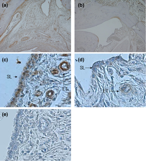 Immnunostaining for VEGF in synovial tissue in AIA rats. (a) , (c) , (e) AIA rats treated with deionized water and (b) , (d) tetrathiomolybdate (TM). Immunohistochemical staining was performed with the Vecto Stain avidin–biotin peroxidase complex kit (Vector Laboratories, Burlingame, CA, USA). Synovial tissues sections were stained with (a)–(d) mouse anti-VEGF monoclonal IgG antibodies (1:200 dilution, in PBS; Santa Cruz Biotechnology, Santa Cruz California, USA) and (e) a normal mouse IgG (1:200 dilution, in PBS). Positive immunostaining was indicated by brownish deposits. The counterstain was an aqueous solution of hematoxylin. (a), (b) Original magnification × 40; (c)–(e) original magnification × 400. AIA, adjuvant-induced arthritis; ET, endothelial cell; SL, synovial lining cell.