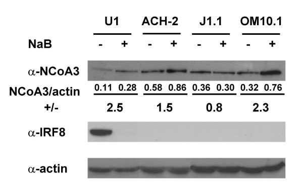 Western blot analysis of NCoA3 and <t>IRF8</t> proteins expression . Nuclear extract (100 μg) from U1, ACH-2, J1.1 and OM10.1 treated (+) or not (-) with NaB for 24 h were resolved by SDS-PAGE and immunoblotted with anti-NCoA3 or anti-IRF8 antibody, as indicated. The amount of protein was normalized using anti-actin antibody. Figures below NCoA3 immunoblot indicated the results of the quantification using Image Tool (Syngene) software of the ratio NCoA3/actin upon NaB-treatment (+) versus NCoA3/actin non-treated (-). Results are representative of three independent experiments.