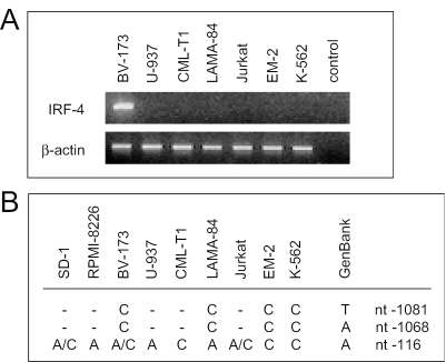 Correlation of IRF-4 mRNA expression and nucleotide changes in the IRF-4 promoter. ( A ) RT–PCR of different hematopoietic cell lines. ( B ) nucleotide changes in the promoter of IRF-4-positive or -negative cells in comparison to the germline sequence at positions 98, 111 and 1063 (GenBank accession no. U52683 ), representing nucleotide −1081, −1068 and −116 ( 30 ) or −1094, −1081 and −129 ( 31 ), respectively.