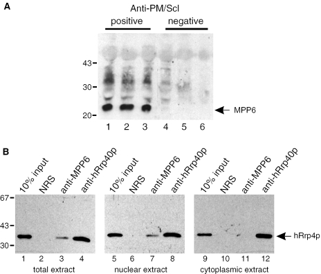 MPP6 is associated with nuclear exosome complexes. ( A ) HEp-2 cell extracts were subjected to immunoprecipitation with three anti-PM/Scl-positive (lanes 1–3) and three anti-PM/Scl-negative patient sera (lanes 4–6). Precipitated proteins were analysed by western blotting using a rabbit anti-MPP6 serum. The positions of molecular mass markers (kDa) are indicated on the left. ( B ) Reciprocal experiment in which a normal rabbit serum (lanes 2, 6 and 10), a polyclonal anti-MPP6 serum (lanes 3, 7 and 11) and a polyclonal anti-hRrp40p serum (lanes 4, 8 and 12) were used for immunoprecipitations. A monoclonal antibody to hRrp4p was used for the detection of a co-precipitated exosome component. For the immunoprecipitations total (lanes 1–4), nuclear (lanes 5–8) and cytoplasmic (lanes 9–12) HEp-2 cell extracts were used. Input material (10%) of the extracts was loaded in lanes 1, 5 and 9, respectively. The positions of molecular mass markers (kDa) are indicated on the left.