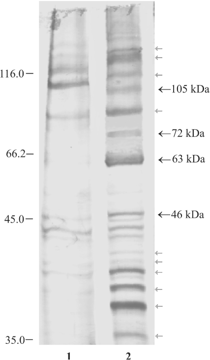Affinity chromatography of ARS RNA-binding proteins. In vitro synthesized ARS RNA was covalently linked to agarose beads and incubated with HeLa cell extract. The bound polypeptides were eluted, resolved on 10% SDS–PAGE and visualized by silver staining. Lane 1, pGEM-T and lane 2, ARS RNA bound protein fractions. The polypeptides specific for the ARS RNA affinity chromatography are shown by arrows. The polypeptides with bold arrows were seen in the UV crosslinking experiments.
