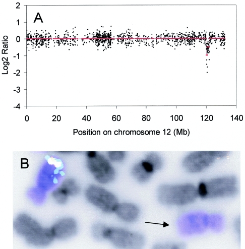 Detection of a heterozygous deletion by the oligo array CGH platform. ( A ) DNA from the cell line SKBR7 was hybridized with normal male reference DNA on a human oligo array. Log2ratios were calculated without moving average and are displayed in black as a function of their position on chromosome 12. The smoothed values of the log2ratios are displayed in red. ( B ) Validation of the heterozygous deletion on 12q24 by FISH analysis of cell line SKBR7. Chromosome 12 paint (dark blue) shows two copies of seemingly normal chromosome 12. FISH using 3 BACs, RP11-340F14 (red), RP11-44F24 (green) and RP11-7M8 (aqua blue) confirmed the interstitial deletion on one copy of chromosome 12 (arrow). Overlapping FISH signals from different BACs show up in white.