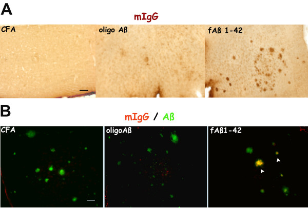 IgG is deposited at detectable levels in Tg 2576 animals immunized at 12 months with fAβ . Representative pictures of cortex sections of mice immunized from 12–16 months with CFA, Oligo Aβ and fAβ. A. Direct immunoperoxidase labeling of mouse IgG using a biotinylated anti mouse IgG and streptavidin-HRP. B. Fluorescent double labeling with horse biotinylated anti mouse IgG (Vector) detected with streptavidin-CY-3 (red) and polyclonal anti Aβ antibody (M-16) detected with FITC conjugated anti rabbit antibody (green). Arrowheads show colocalization of reactivity in some of the plaques. Scale bars: 50 microns.