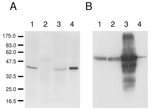 Immunoblot of LmxMPK4 from L. mexicana wild type and episomal overexpressor . Lane 1, L. mexicana wild type promastigotes (4 × 10 7 cells); lane 2, amastigotes derived from mouse lesion (4 × 10 7 cells); lane 3, wild type in vitro differentiated amastigotes (1 × 10 8 cells); lane 4, promastigotes of LmxMPK4 episomal overexpressor (1 × 10 7 cells). A, blot probed with antiserum against the carboxy-terminal peptide of LmxMPK4; B, the blot was stripped and re-probed with a polyclonal antiserum against myo-inositol-1-phosphate synthase. The molecular masses of standard proteins are indicated in kilodaltons.