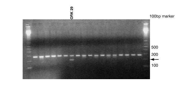 c.676C > T mutation in normal DNA . Agarose gel showing restriction digest by Nde1 of exon 5 amplified by PCR from normal DNA samples. The PCR product from ORK 29 shows an additional band of appropriate size suggesting heterozygous alteration, c.676C > T.