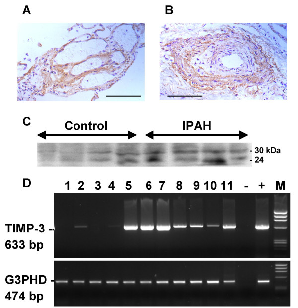 Localisation of TIMP-3 in IPAH lung tissue. Immunocytochemistry for TIMP-3 was carried out using an polyclonal antisera raised against the human carboxy-terminal peptide of TIMP-3. Plexiform lesion showing location of TIMP-3 in subendothelium. (A). Hypertrophied artery, showing location of TIMP-3 in in vascular smooth muscle cells and myoblasts (B). Scale bars = 100 μm. Protein extracted from IPAH and donor lung tissues was analysed by western blot using an antiserum to TIMP-3 (C). The antibody recognises both the unglycosalated form (24 kDa), and the glycosalated form of TIMP-3 (30 kDa). Expression of TIMP-3 in human cells (D). RNA extracted from human cell lines and explant derived cells was reverse transcribed and amplified by PCR and run on agarose/ethidium bromide stained gels. RT-PCR for TIMP-3 (top panel) and G3PDH (bottom panel). The cell types examined were: Lanes; 1, HL60 (promyelocytic leukaemia); 2, Daudi (Burkitt's lymphoma); 3, EB-transformed lymphocytes; 4, K562 (erythroleukemia) 5, pulmonary adult fibroblasts; 6, pulmonary artery smooth muscle; 7, bronchial smooth muscle; 8, A549 (adenocarcinoma alveolar epithelial); 9, H322 (adenocarcinoma bronchial epithelial); 10, placental microvascular endothelial; 11, umbilical vein endothelial; -, no cDNA negative control; + control lung cDNA; M, phiX174 DNA/HaeIII markers.