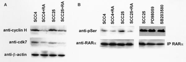 RA decreases cyclin H-cdk7 expression and inhibits RARα phosphorylation. (A) SCC4 and SCC25 cells were treated with vehicle or 1 μM RA (+RA) for 16 hours as described in Methods. Cyclin H and cdk7 expression was determined by western blot. Blots were stripped and incubated with anti-β-actin antibody to ensure equal amounts of protein in each lane. (B) RA inhibits RARα phosphorylation. RARα was immunoprecipitated (IP RARα) from lysates of vehicle and RA treated SCC4 and SCC25 cells as described in Methods. Blots were incubated with anti-phosphoserine antibodies (anti-pSer) followed by stripping and probing with anti-RARα antibodies to ensure equal relative amounts of immunoprecipitated protein in each lane. To determine the specificity of this assay, SCC25 cells were treated with vehicle or the selective MAPK inhibitors PD98059 (50 μM) or SB203580 (10 μM) for up to 24 hours. RARα protein was immunoprecipitated as described above. These experiments were performed three times with similar results. Representative blots are shown.