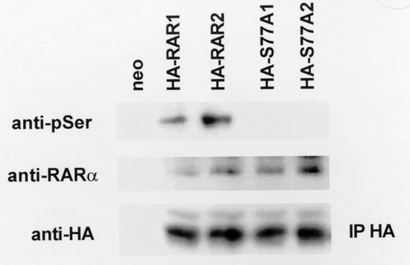 The S77A mutant is not phosphorylated on serine in SCC25 cells. Cells were stably transfected with HA tagged RARα (HA-RAR1,2), S77A mutant (HA-S77A1,2), or G418 resistance (neo) expression vectors. HA tagged RARα proteins were immunoprecipitated from cellular lysates using anti-HA antibody (IP HA). Blots were incubated with anti-phosphoserine antibodies (anti-pSer) to determine relative levels of RARα phosphorylation on serine residues. Blots were stripped and incubated with anti-RARα antibody to confirm the identity of the anti-HA immunoprecipitates. Blots were incubated with anti-HA antibody to ensure equal amounts of immunoprecipitated protein in each lane. These experiments were performed three times using different clones with similar results. Representative blots are shown.