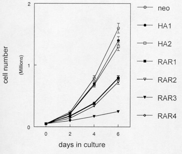 The S77A RARα mutant inhibits proliferation of SCC25 cells. G418 resistant (neo), wild type HA-tagged RARα (HA1,2), and S77A mutant clones (RAR1-4) were cultured as described in Methods. At two day intervals, the cells in triplicate cultures were counted with a hemacytometer. These experiments were performed three times with similar results. Error bars indicate SEM.