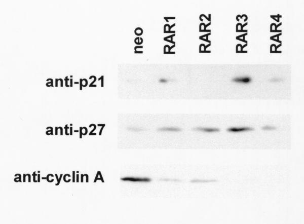 Cultures of G418 resistant (neo) and S77A RARα mutant (RAR1-4) SCC25 clones were harvested for western blot as described in Methods. Blots were incubated with primary antibodies to the G1 cyclin dependent kinase inhibitors p21 WAF1/Cip1 and p27 Kip1 and to the S phase cyclin A. These experiments were performed three times using different lysates with similar results. Representative blots are shown.