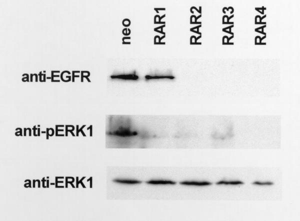 EGFR expression and ERK1 activation are inhibited in S77A RARα mutant cells. Cells were harvested for western blot as described above. Blots were incubated with anti-human primary antibodies to EGFR, activated ERK1 (anti-pERK1), and total ERK1. These experiments were performed three times using different lysates with similar results. Representative blots are shown.