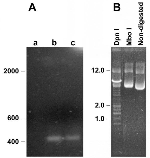 Persistence of DNA adenine methylase site methylations (dam) of pcDNA3-HSP65 in muscle at 6 months after immunization . (A) Approximately 1 μg cellular DNA obtained from muscle of immunized mouse were digested with Nde I and Dpn I (lane a), Nde I and Mbo I (lane b), or with Nde I alone (lane c) and amplified by PCR using Hsp65 primers. The samples were submitted to electrophoresis on a 1% agarose gel (B) The positive control was done using E.coli DNA digested with Dpn I, Mbo I or non-digested to show the dam methylation pattern. The mobility of DNA size standards (l DNA cut with Hind III) are shown on the left.