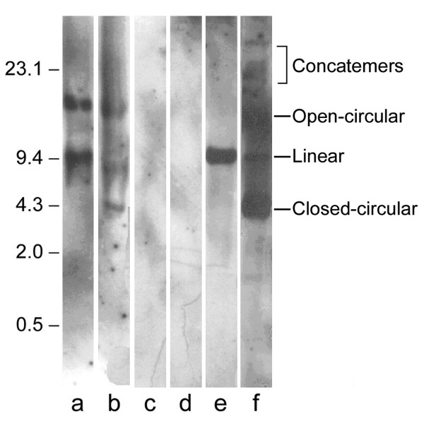 Analysis of the pcDNA3-Hsp65 genome integration . Samples of liver tissue from mice immunized with 100 μg of pcDNA3-HSP65 (lanes a and b) and from nonimmunized mice (lanes c and d) (negative control) were submitted to Southern blot after Nde I digestion. Lanes e and f correspond to wild-type plasmid digested with Nde I or undigested, respectively. The bands were detected using pcDNA3 labeled with chemiluminescent reagent. The multiple forms of plasmid DNA are indicated in the figure. The samples were loaded in a same gel and the lanes not used were removed.