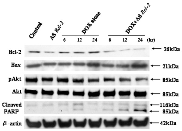 Effect of treatment of ZR-75-1 cells with antisense Bcl-2 and doxorubicin on the apoptosis-related proteins. Cells were pretreated with 10 μg/ml Lipofectamine alone, or 1.0 μM antisense Bcl-2 oligodeoxynucleotides, for 24 hours. Cells were then cultured in standard medium, after which they were treated with 0.5 μM doxorubicin (DOX) for 6, 12, or 24 hours. Whole cell lysate was then extracted and subjected to Western blotting. The data presented are from more than two independent experiments.