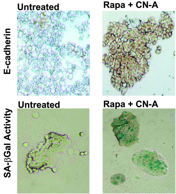 Induction of phenotypic changes in MCF-7 cells treated with CN-A and rapamycin. Upper row: E-cadherin. Cells were cultured in the presence (right) or absence (left) of 10 μg/ml CN-A plus 0.5 ng/ml of rapamycin for 7 days. Lower row: SA-βGal activity. Cells were cultured in the presence (right) or absence (left) of 10 μg/ml CN-A plus 0.5 ng/ml rapamycin for 7 days. CN-A, cotylenin A; Rapa, rapamycin; SA-βGal, senescence-associated β-galactosidase.