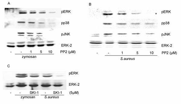 Inhibition by PP2 or SKI-1 of zymosan- and S.aureus - induced phosphorylation of MAP kinases . Macrophages were pretreated for 15 min with PP2 (1–10 μM), followed by stimulation with zymosan ( A ) or S.aureus ( B ) for 20 min. ( C ) Macrophages were pretreated for 15 min with SKI-1 (5 μM), followed by stimulation with zymosan or S.aureus for 20 min. Equal amounts of cell lysate were run on 10% polyacrylamide gels and probed with phosphospecific antibodies against ERK, p38 and JNK. The membrane was reprobed with ERK-2 antibody to verify equal loading of protein.