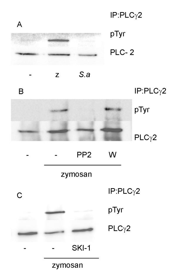 Zymosan but not S.aureus induced tyrosine phosphorylation of PLC γ2 . ( A ) Macrophages were stimulated with zymosan(z) or S.aureus ( S.a ) for 45 min. (B and C) Macrophages were pretreated for 15 min with either PP2 (5 μM), wortmannin (W, 100 nM) ( B ) or SKI-1 (5 μM) ( C ) followed by stimulation with zymosan for 30 min. Cell lysates were immunoprecipitated with antibody against PLCγ2 as described, followed by Western blot analysis with phosphotyrosine-specific antibody. The membrane was stripped and reprobed with antibody against PLCγ2. The data are representative of three separate experiments.