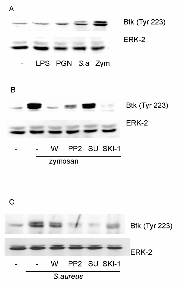 Zymosan and bacteria but not LPS or peptidoglycan (PGN) induce phosphorylation of Btk . ( A ) Macrophages were stimulated with zymosan (zym), S.aureus ( S.a .), LPS or PGN for 30 min. (B and C) Macrophages were pretreated for 15 min with either wortmannin (W, 100 nM), <t>PP2</t> (5 μM), SU6656 (5 μM) or SKI-1 (5 μM), followed by stimulation with zymosan ( B ) or S.aureus ( C ) for 30 min. Equal amounts of cell lysate were run on polyacrylamide gels and probed with phosphospecific antibodies against Btk. The membrane was reprobed with ERK-2 antibody to verify equal loading of proteins. The data are representative of three separate experiments.