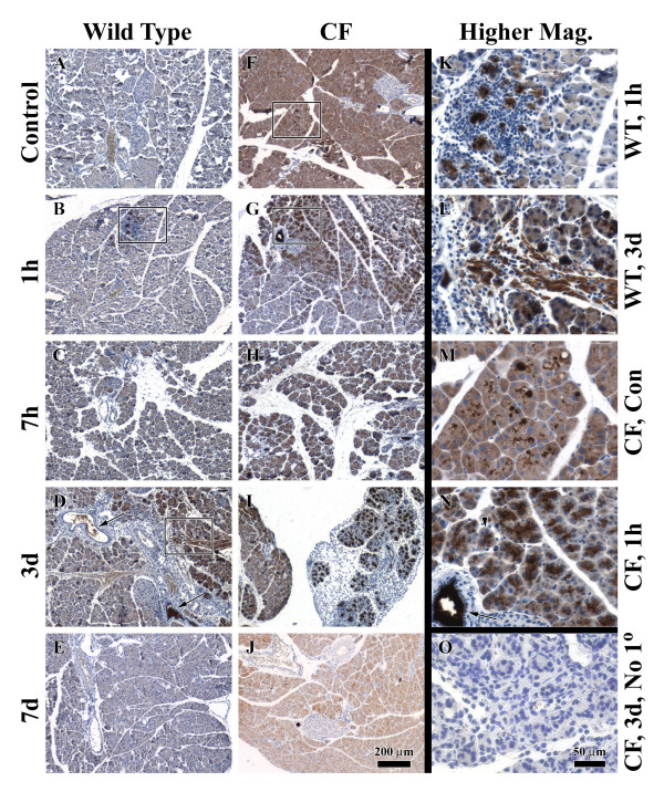Immunohistochemistry for Reg3α in wild type and CF mice during acute pancreatitis . Paraffin sections of pancreas from wild type and CF mice, untreated controls or with caerulein-induced pancreatitis, were stained with a Reg3α-specific antibody by the Vectastain ABC technique. Wild type: (A) untreated control; (B) 1 h after a single injection; (C) 7 h after the beginning of seven injections; (D) 3d after the beginning of seven injections. Note reactivity in duct lumina (arrows); and (E) 7d after the beginning of seven injections. CF: (F) untreated control; (G) 1 h; (H) 7 h; (I) 3d; and (J) 7d. Higher magnification images: (K) wild type, 1 h, from the boxed region in panel (B) showing strong expression in a region of inflammation; (L) wild type, 3d, from the boxed region in panel (D) showing expression in a region of fibrosis; (M) untreated CF, from the boxed region in panel (F) showing strong expression in dilated acinar lumina; (N) CF, 1 h, from the boxed region in panel (G) showing expression in acinar cells (arrowhead) and duct lumen (arrow); (O) Omission of the primary antibody (No 1°) as a negative control. This was an adjacent section to that shown in panel (I) focusing on the region of inflammation where specific staining was intense when the primary antibody was included. The scale bar in (J) applies to (A-J). The scale bar in (O) applies to (K-O).