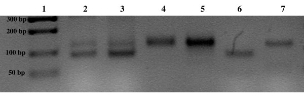 PCR products of bluegill DNA (Lake Wapalanne), employing Lma20 primers to amplify microsatellite regions. Lane 1: molecular weight markers (Hi-Lo Marker, Minnesota Molecular), size indicated in basepairs. Lanes 2–7: bluegill Lma20 microsatellite polymorphisms. Buccal tissues employed for this experiment were stored overnight in 100% ethanol before DNA extraction after 24 hours. Heterozygotes and homozygotes for the Lma20 marker are clearly delineated in the individual fish. 2% agarose gel stained with ethidium bromide. The image was inverted to a negative by Scion computer software (Scion, Inc., Frederick, Maryland).