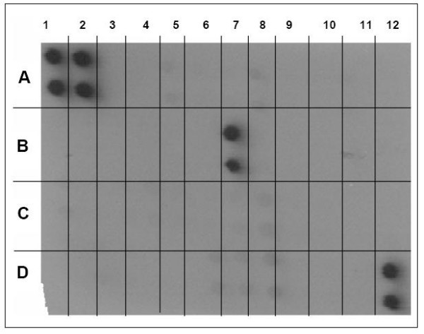 Supernatants from A549 cells treated with high- and low-binding S. pneumoniae were evaluated with a RayBio ® Human Cytokine Antibody Array III, which detects 42 different human cytokines. 1A and 2A, positive control; 3A and 4A, negative control; 5A, ENA-78; 6A, GCSF; 7A, GM-CSF, 8A, GRO; 9A, Gro-α; 10A, I-309; 11A, IL-1α; 12A, IL-1β; 1B, IL-2; 2B, IL-3; 3B, IL-4; 4B, IL-5; 5B, IL-6; 6B, IL-7; 7B, IL-8; 8B, IL-10; 9B, IL-12; 10B, IL-13; 11B, IL-15; 12B, IFN-γ; 1C, MCP-1; 2C, MCP-2; 3C, MCP-3; 4C, MCSF; 5C, MDC; 6C, MIG; 7C, MIP-1; 8C, RANTES; 9C, SCF; 10C, SDF-1; 11C, TARC; 12C, TGF-β; 1D, TNF-α; 2D, TNF-β; 3D, EGF; 4D, IGF-1; 5D, angiogenin; 6D, oncostatin M; 7D, thrombopoietin; 8D, VEGF; 9D, PDGF; 10D, leptin; 11D, negative control; 12D, positive control. The positive result for IL-8, in position 7B, with negative results for all other cytokines, was observed for A549 cells treated with both high- and low-binding bacteria. Experiment replicated with four different high-binding, and four different low-binding, S. pneumoniae strains.