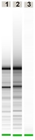 Results of RNA-integrity-testing by a Agilent Bioanalyzer 2100 using the RNA 6000 Pico LabChip kit. Lane 1 and 2 are HOPE-fixed materials and lane 3 is FFPE.