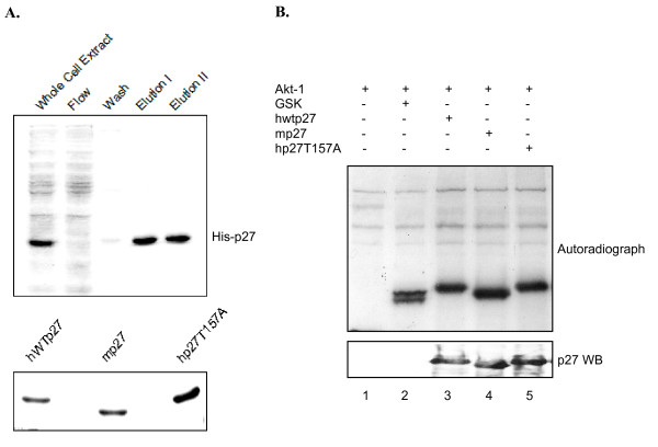 Akt1 phosphorylates human and mouse p27 . A , Purification of His-tagged p27 from E. coli. Upper panel: Aliquots from indicated steps of the purification protocol (see Methods) were separated by SDS-PAGE and visualized by Coomassie blue staining. Bottom panel: Indicated forms of His-tagged p27 were purified as described in Methods and their concentration compared by SDS-PAGE followed by Coomassie staining. B , Constitutively active Akt1 phosphorylates p27 lacking T157. An in vitro kinase assay was performed as described in the Methods by incubating commercial recombinant Akt1(prep1) (see Methods) and [ 32 P]ATP with the indicated substrates. Samples were then separated by SDS-PAGE and visualized by autoradiography. Lane 1 is a negative control lacking Akt1 substrate, while lane 2 shows Akt1 phosphorylates its well-known substrate GSK. Lane 3–5 show Akt1 phosphorylates human wild type p27, mouse p27, and hp27T157A equally well.