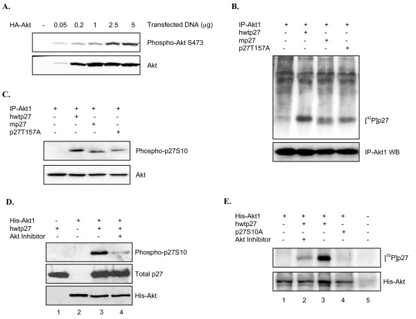 Full length Akt1 phosphorylates p27 at serine 10 in vitro and in cells . A , Expression and activation of Akt1 in HEK293 cells. Increasing amounts of HA-tagged wtAkt1 were transfected in HEK293 cells as described in the Methods. After 36 hours active and total levels of Akt1 were determined by western blot analysis. B , Full length wild type Akt1 phosphorylates p27. Overexpressed HA-Akt1 was purified by immunoprecipitation (IP-Akt1) and incubated alone or with indicated forms of His-p27 in the presence of [ 32 p]-γ-ATP as described in Methods. Autoradiograph shows full length Akt1 phosphorylates human and mouse p27 as well as the hp27T157A mutant. C , Wild type Akt1 targets S10. The kinase reaction was performed by incubating IP-Akt1 with non-radiolabeled ATP and indicated substrates. Western blot shows full length Akt phosphorylates S10. D , Specific Akt inhibitor blocks S10 phosphorylation. A kinase reaction was performed as in C incubating full length His-purified Akt1 with p27 in the presence or absence of Akt inhibitor. S10 phosphorylation was determined by phospho-specific antibody. E , Full length Akt1 fails to phosphorylate hp27S10A. Full length His-Akt1 was incubated in a kinase reaction with the indicated forms of p27 in the presence of radiolabeled ATP. Samples were separated by SDS/PAGE and visualized by autoradiography. Akt inhibitor was added where indicated.